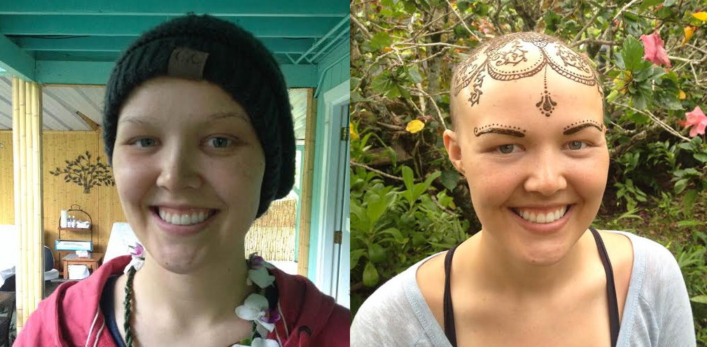 Kristina before and after treatment